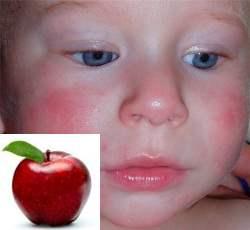 аллергия на яблоки